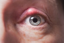 Thumbnail image for What is a Stye?